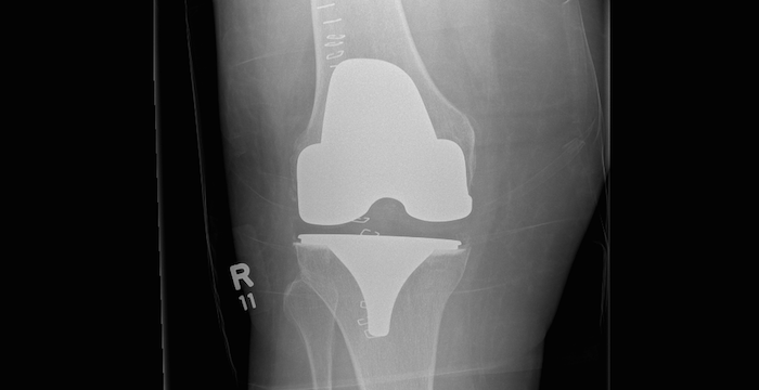 xray of knee replacement